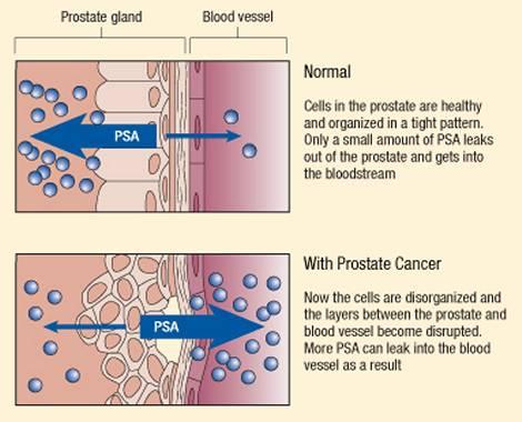 PSA (Prostate Spesific Antigen) Test Interpretation, with