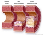 cholestrol deposit in blood vessel